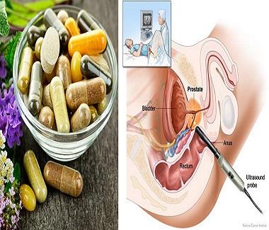 Prostat İltihabı Tedavisi